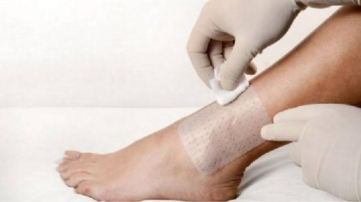 centro de tratamento de feridas