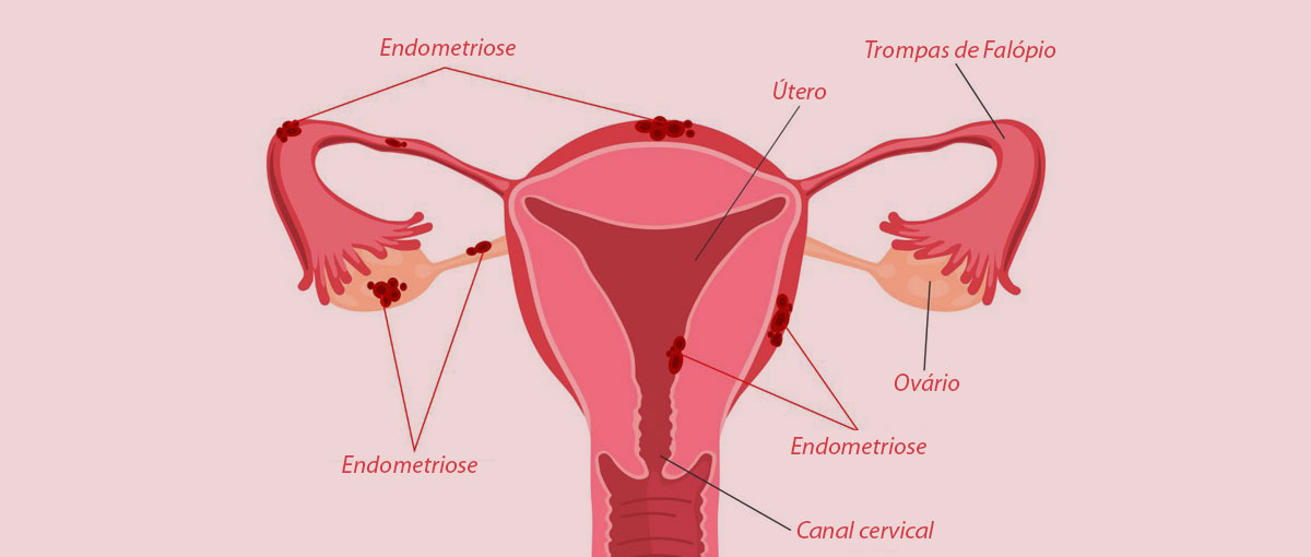 Como tratar Endometriose