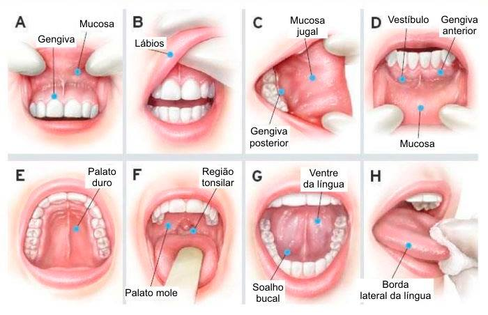 Como identificar câncer de laringe, boca e orofaringe