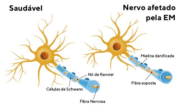 Conscientização sobre esclerose múltipla