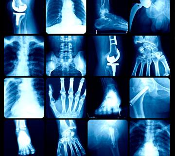 centro de ortopedia leforte