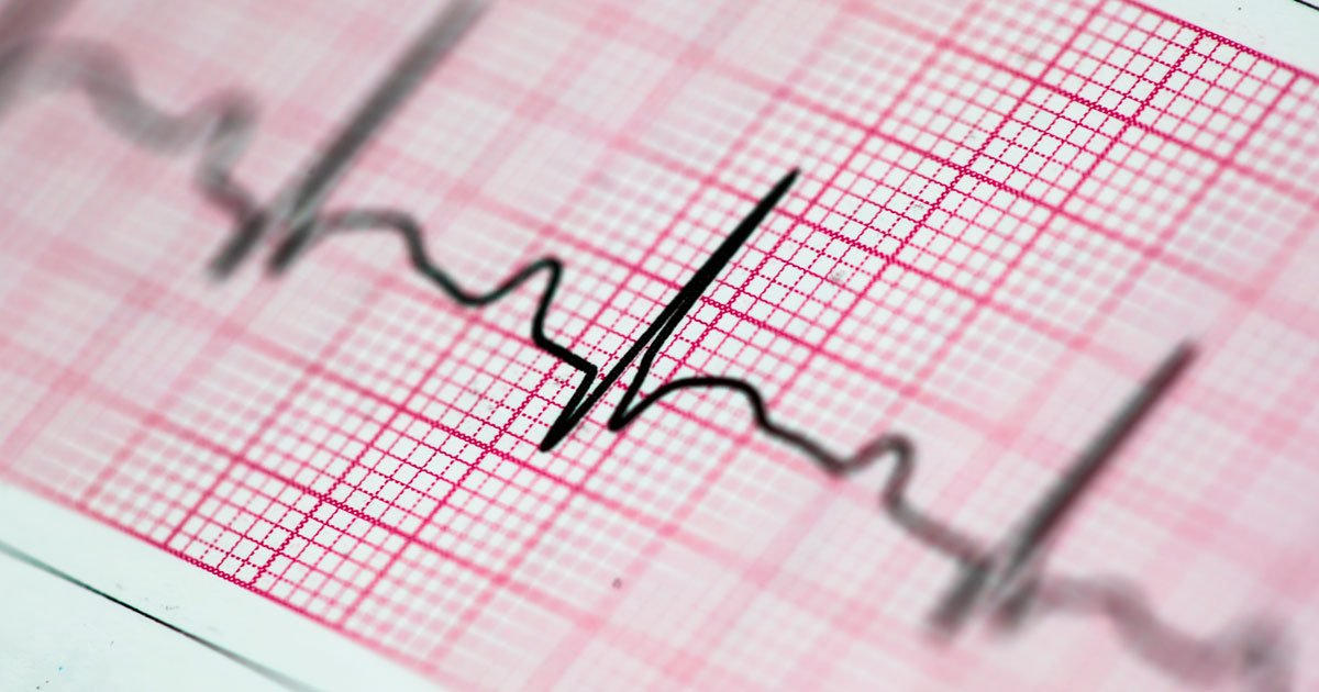Novos procedimentos oferecem maior qualidade de vida a pacientes com arritmia cardíaca